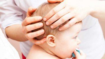 Kefalhematom, Boule na hlavě novorozenců po porodu