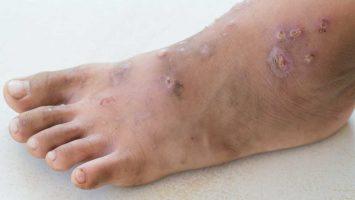Infekční inemocnění impetigo