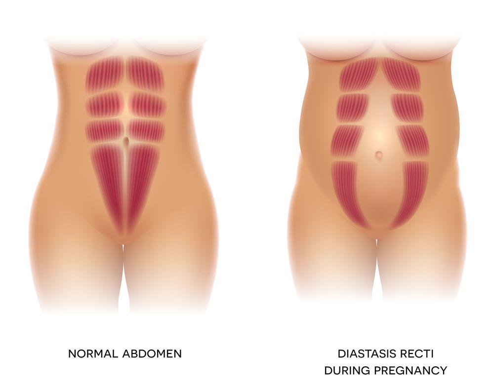Diastáza břišních svalů po porodu
