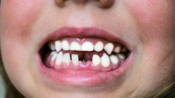 Co dělat, když si dítě vyrazí zub