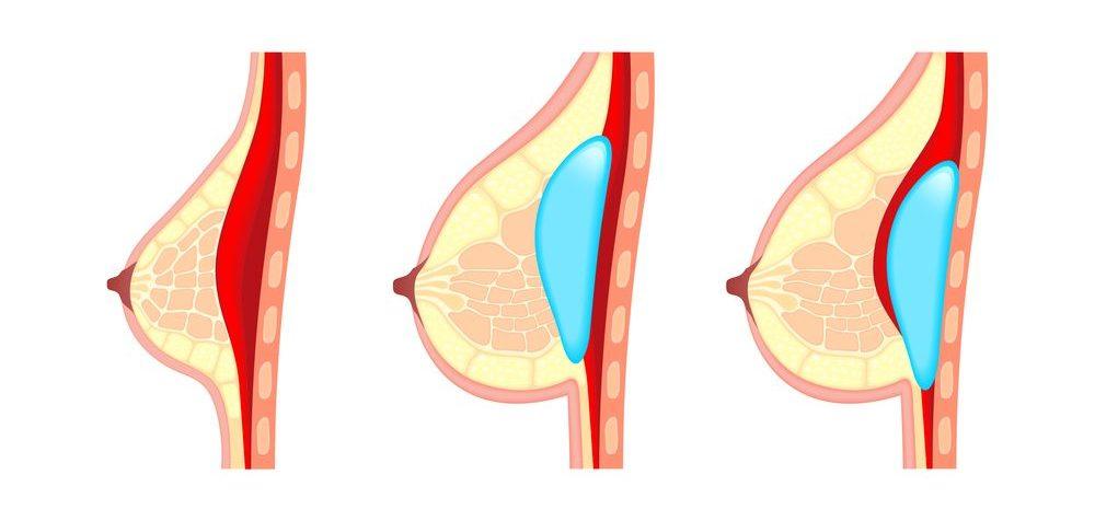 Kojení s prsními implantáty