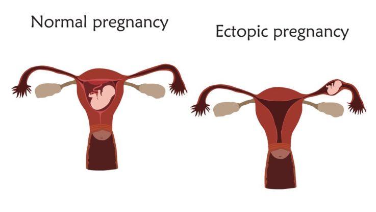 Příznaky mimoděložního těhotenství